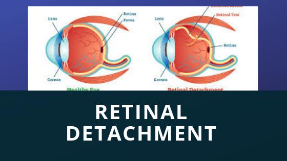 रेटिनल डिटैचमेंट: यह क्या है, कारण, लक्षण, सर्जरी और उपचार दिल्ली में