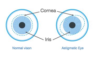 Normal vs Astigmatic Eye