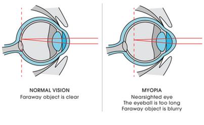 Myopia Vs Normal Vision