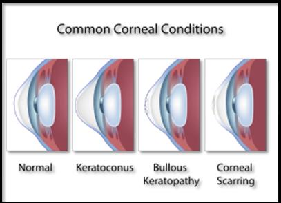 Common Corneal Conditions