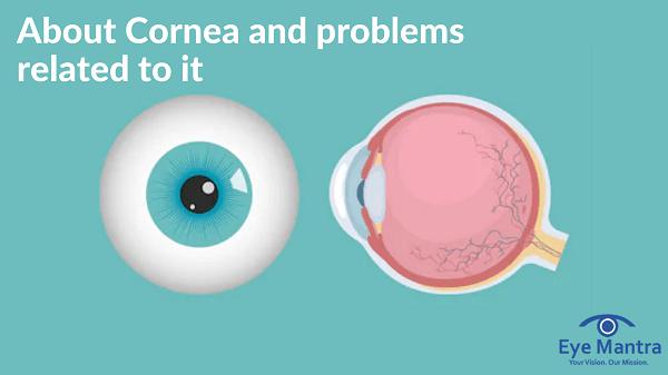 cornea and problems