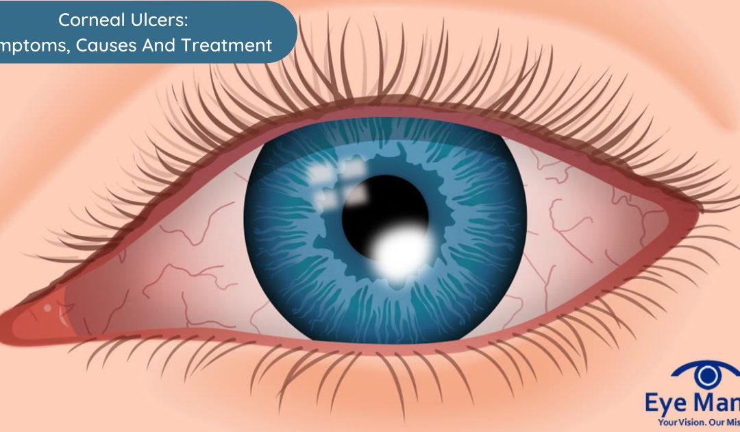 cornea ulcer