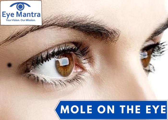 A Mole On The Eye (Nevus/ Eye Freckle)