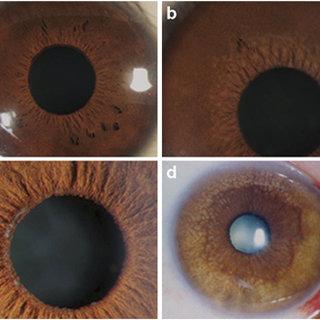 Diagnosis of Fuchs' corneal dystrophy