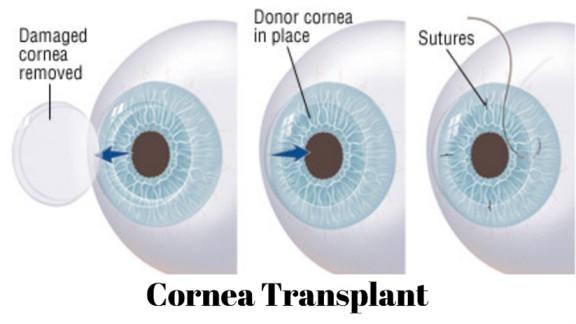 Procedure of transplant