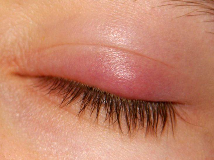 A lump on the eyelid,