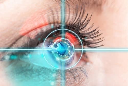 Contoura Vision specs removal