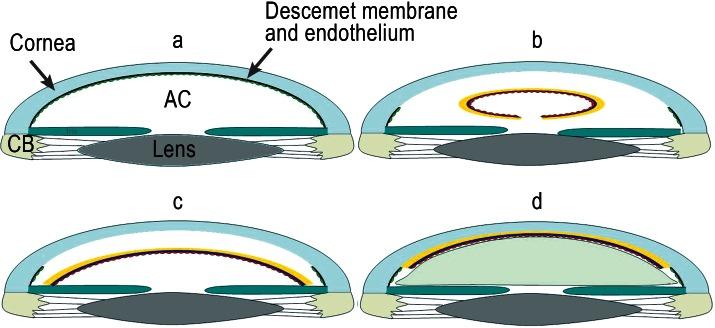 Descemet's Stripping Endothelial Keratoplasty (DSEK)