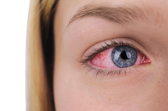Dry Irritated Eyes