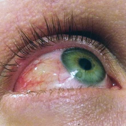 Eye allergies (2)
