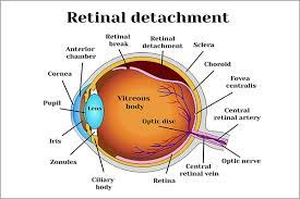 Family history of retinal detachment