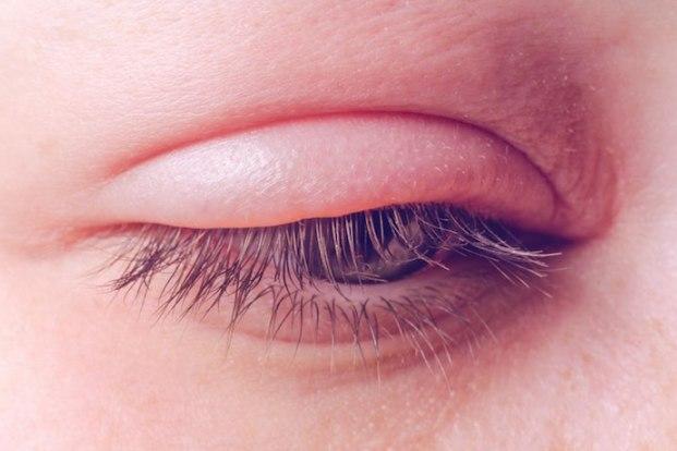 Swelling of the eyelid,