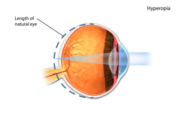 Uncorrected refractive errors.