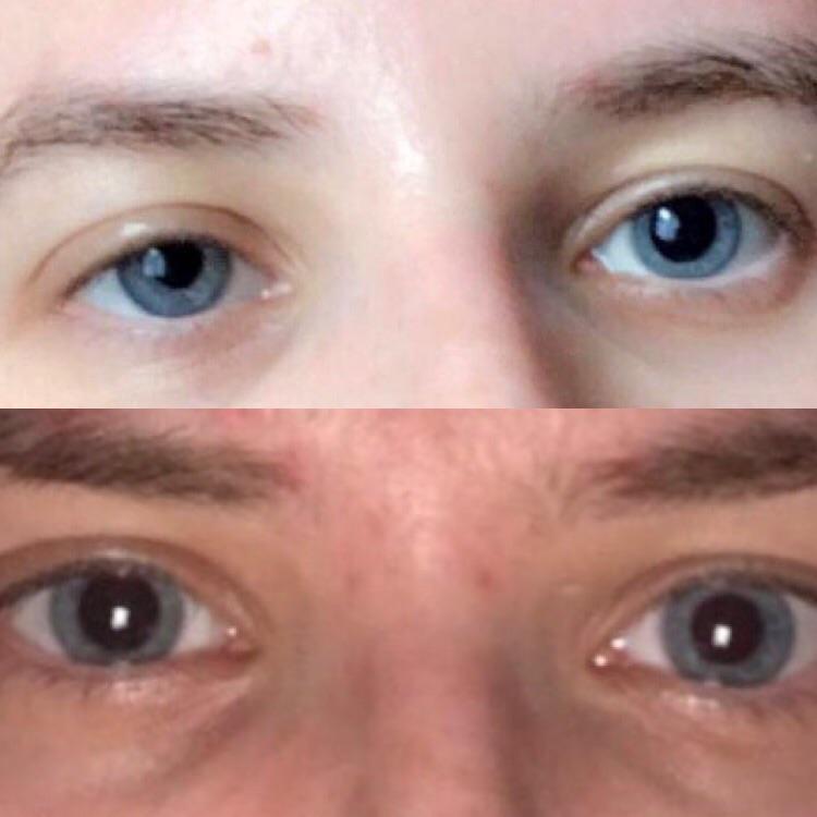 Unequal pupil size
