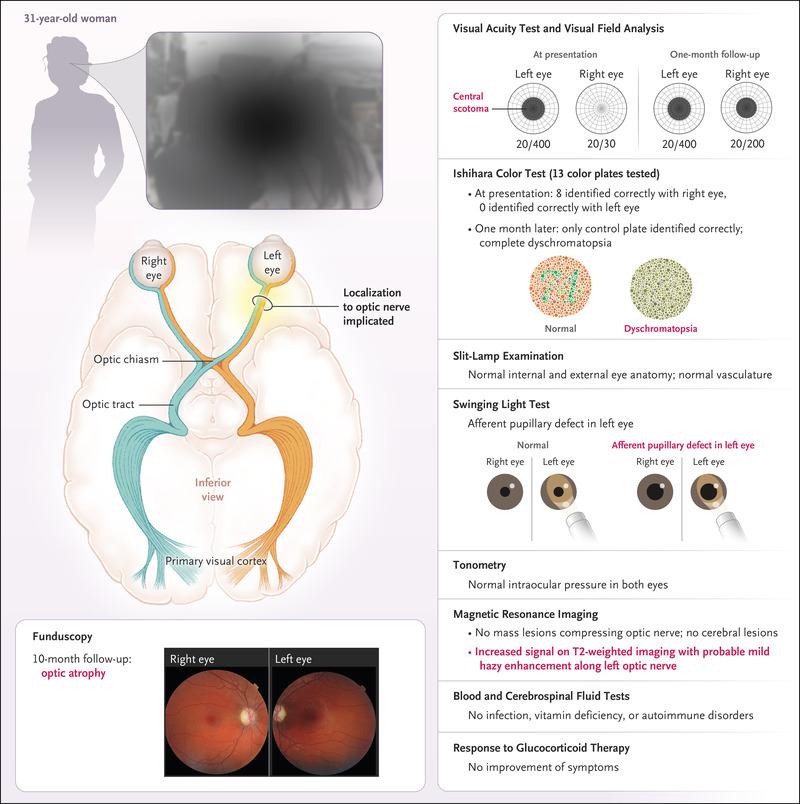 Visual Field Deficiencies