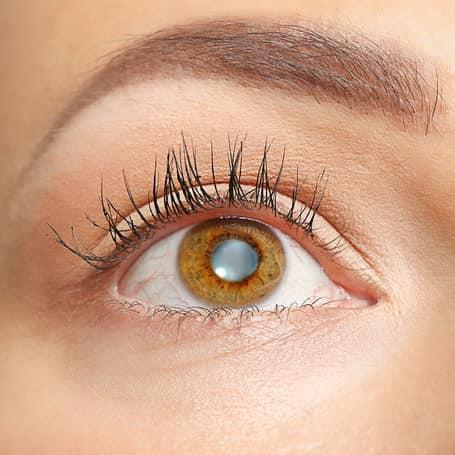 Cloudy Eye Lens Cataract