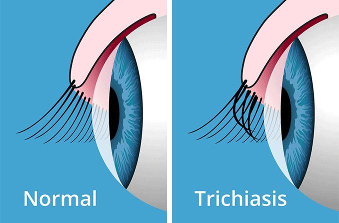 trichiasis-678x446